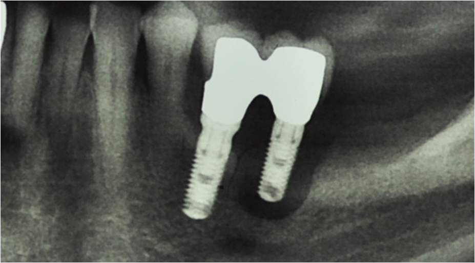 Peri-implantitis and periodontitis. Experimental and clinical studies